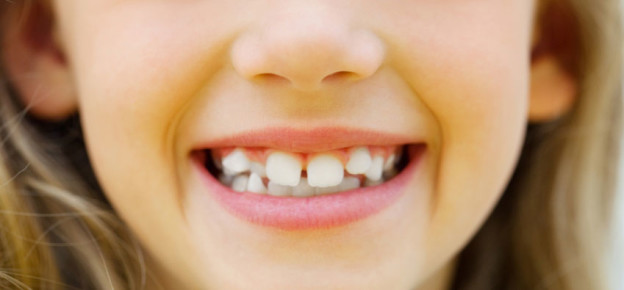 young girl's crooked teeth